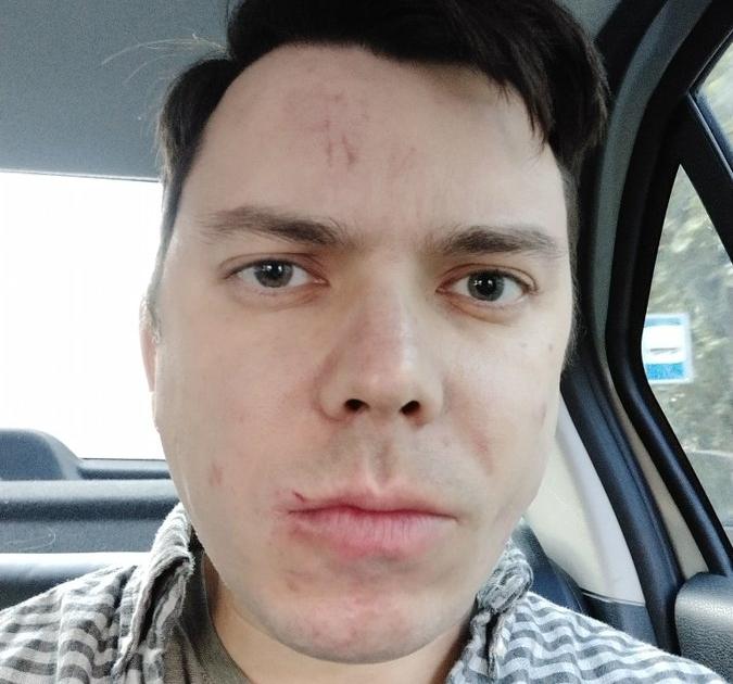 Неизвестные избили бывшего координатора избирательной кампании штаба Навального в Петербурге